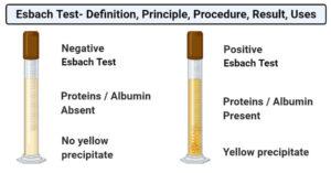 Esbach test