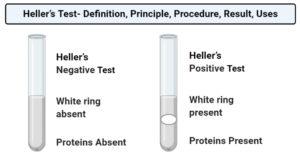 Heller's Test