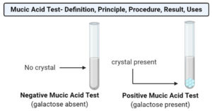 Mucic Acid Test- Definition, Principle, Procedure, Result, Uses