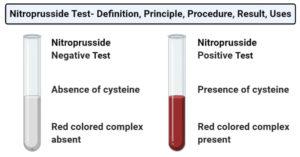 Nitroprusside Test