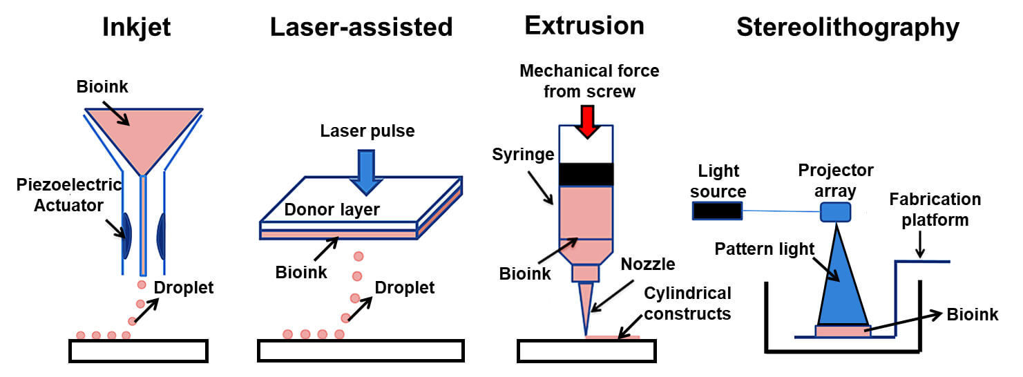 3D Bioprinting Technology (Types)