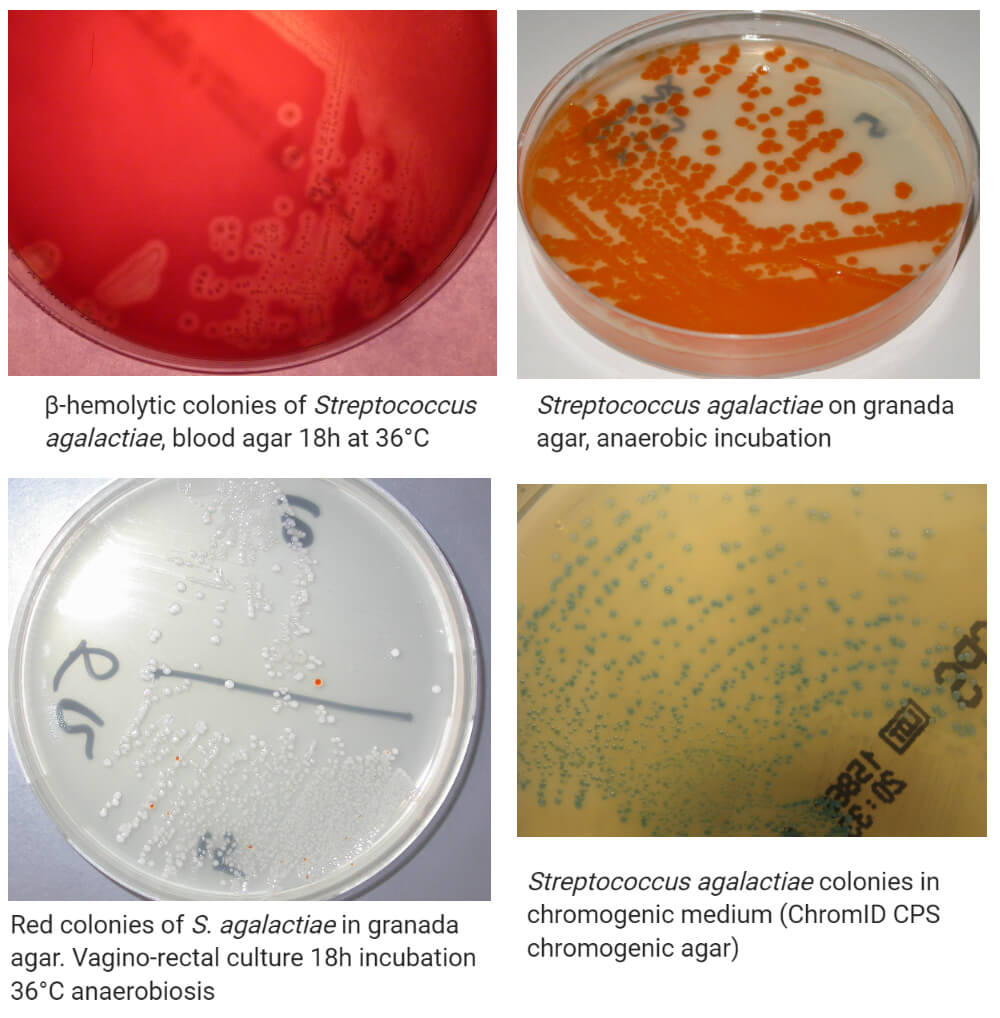 Cultural characteristics of Streptococcus agalactiae