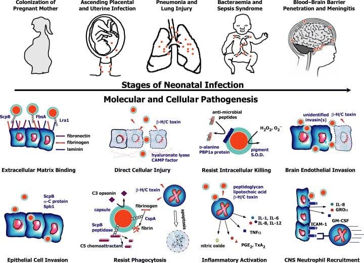 Pathogenesis of Streptococcus agalactiae