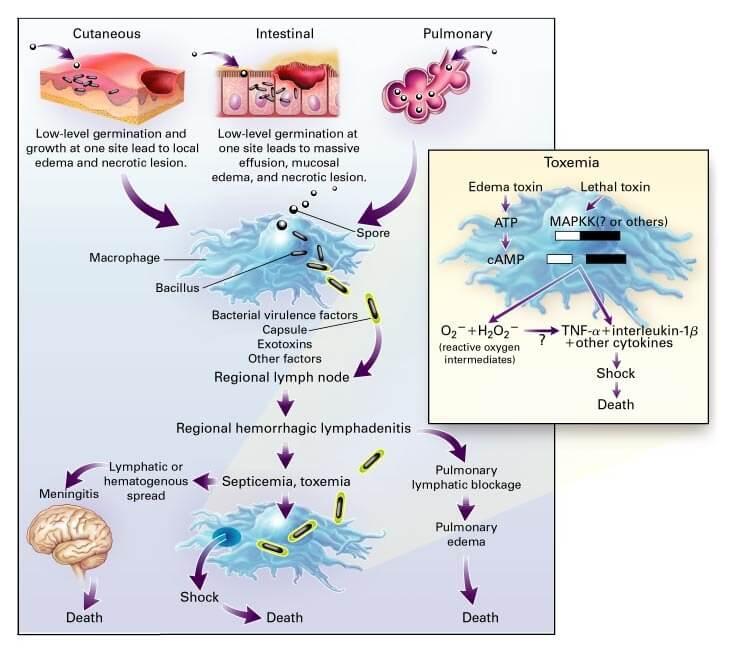 Pathophysiology of Anthrax