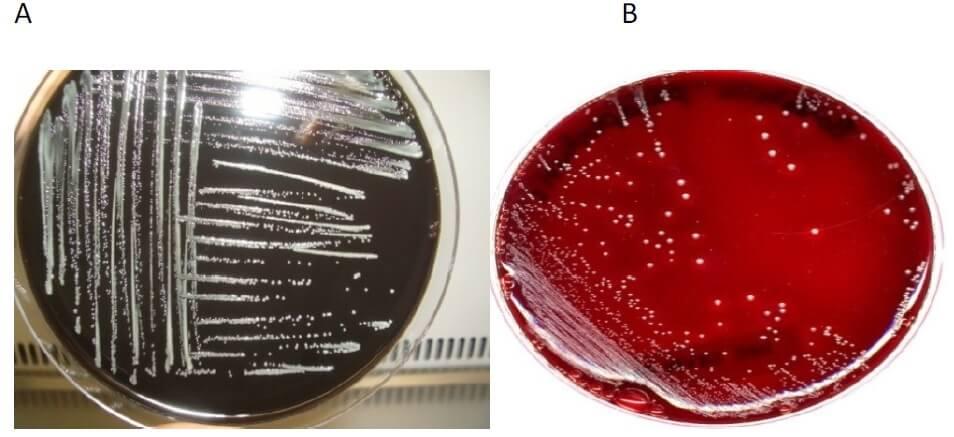 Cultural Characteristics of Bordetella pertussis