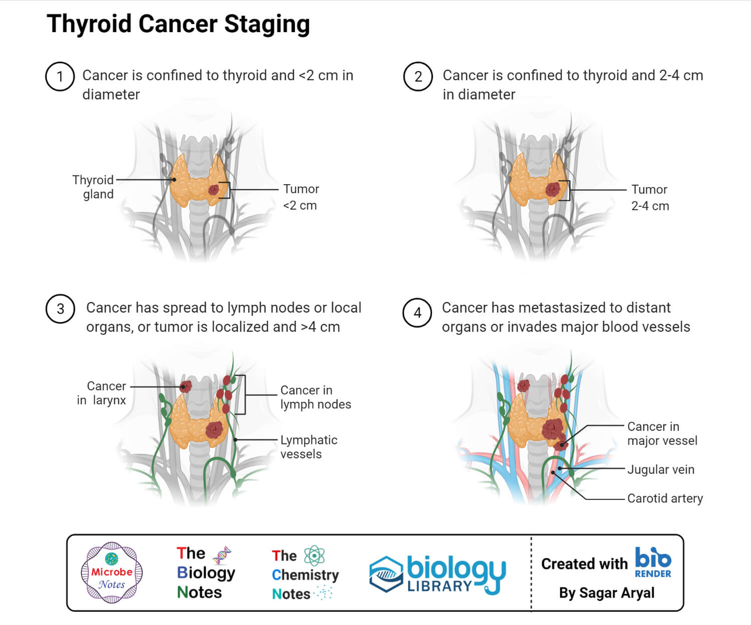 Thyroid Cancer Staging