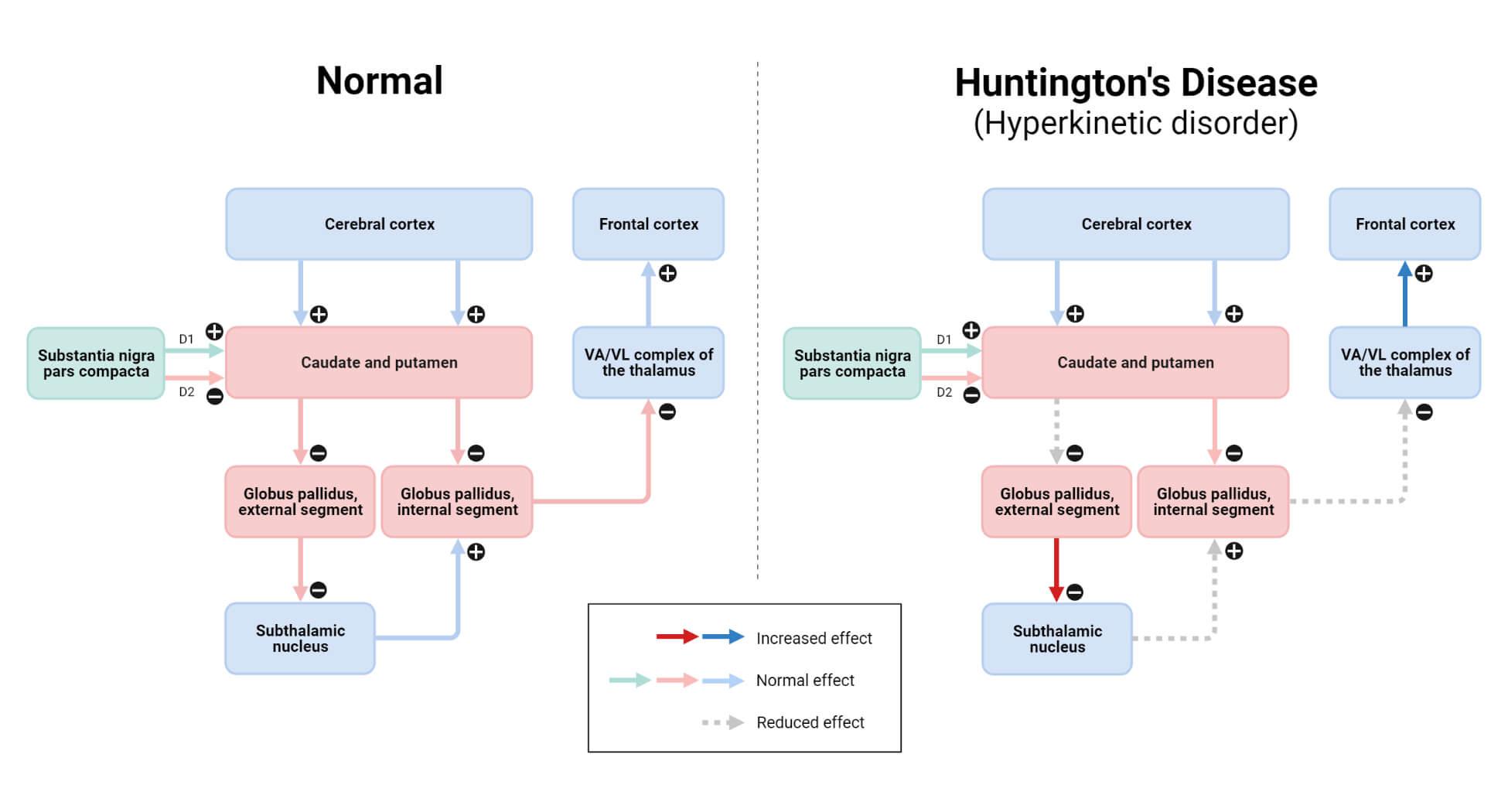 Huntington's Disease (Hyperkinetic Disorder)